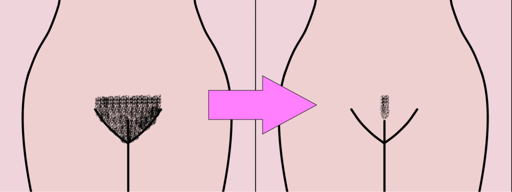 What Is a Pubic Hair Landing Strip? - LiveAbout